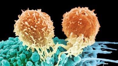 Лимфом: Видове, причини и лечение