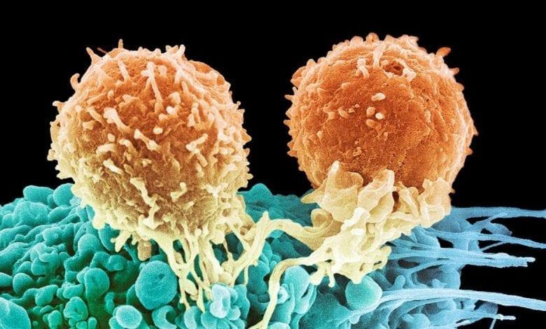 Photo of Какво е Лимфом? Лимфом: Видове, причини и лечение