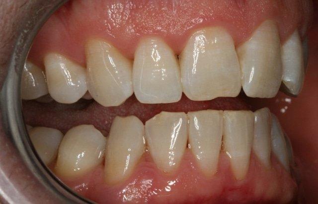 Болки във венците