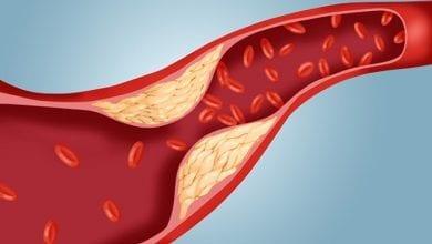 Photo of Какви са препоръчителните нива на холестерола по възраст?
