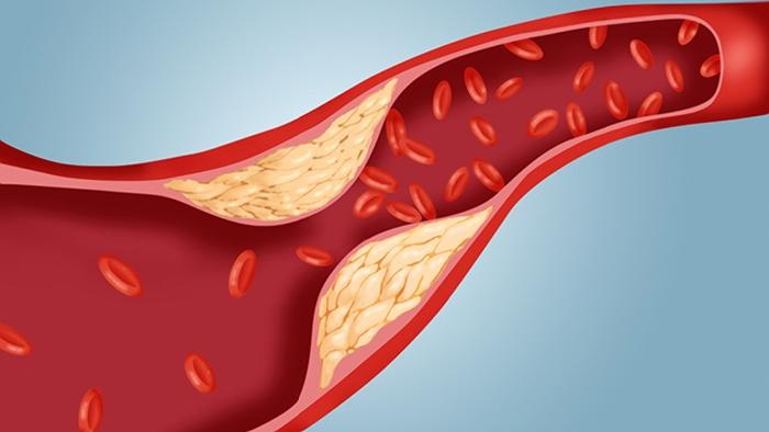 Какво е холестерол ? Таблица на ldl и hdl .