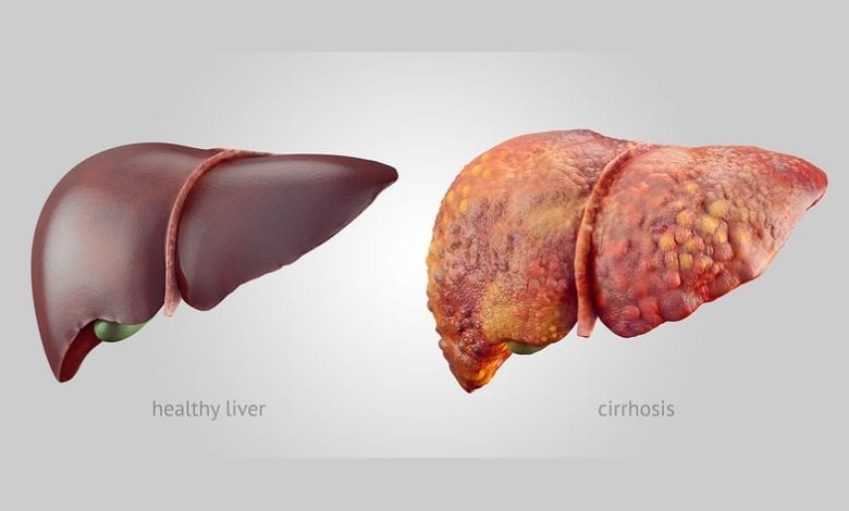 Цироза - Симптоми, лечение и етапи