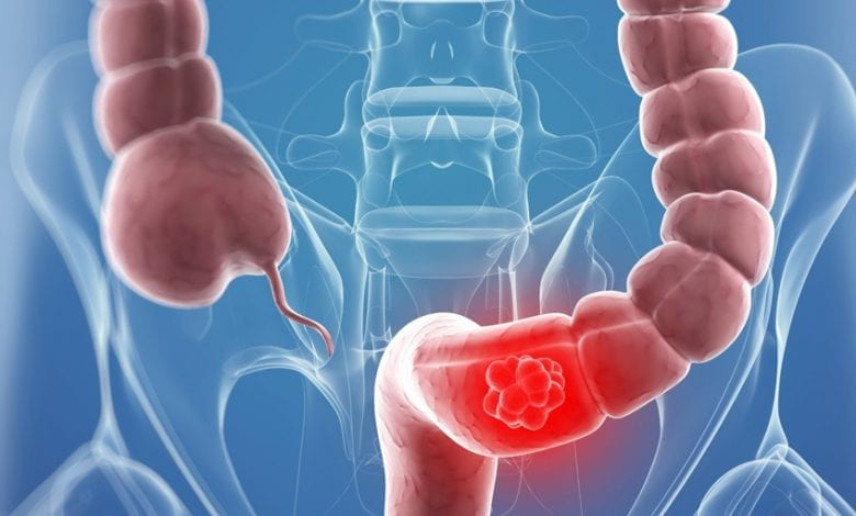 Photo of 9 симптоми на рак на дебелото черво и 4 начина за лечение