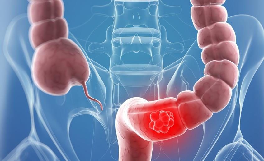 рак-на-дебелото-черво-причини-лечение