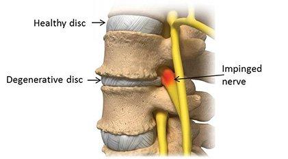 Дегенеративно дискова болест