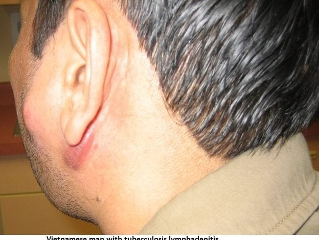 Photo of Увеличени лимфни възли: 9 естествени начини за лечение