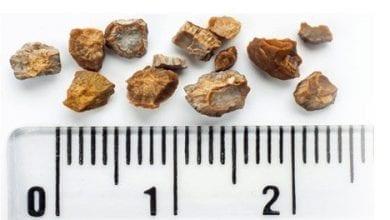 Photo of Какво причинява камъни в бъбреците? Симптоми, лекарства, хирургия