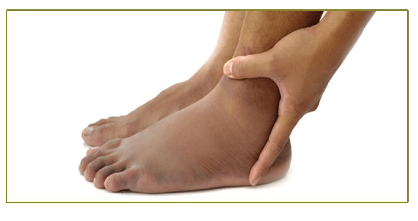 Какво-причинява-подуване-на-краката