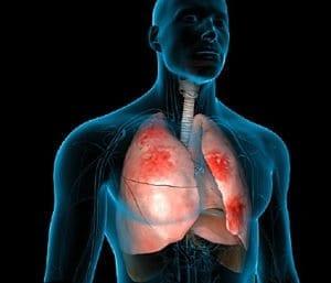 Пневмония-видове-лечение