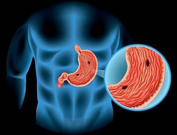 Photo of Язва: Симптоми, причини, видове, съвети за хранене и лечение