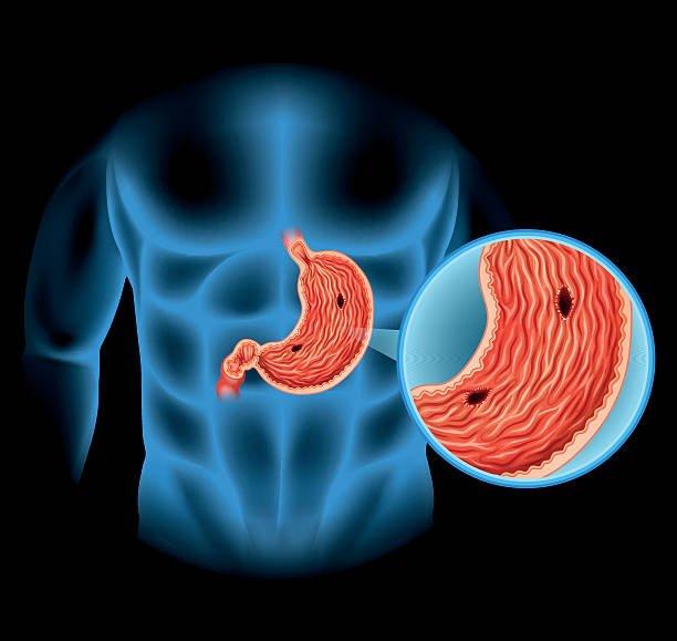 язва-на-стомаха-причини-лечение