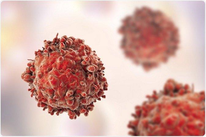 Левкемия-видове-причини-лечение