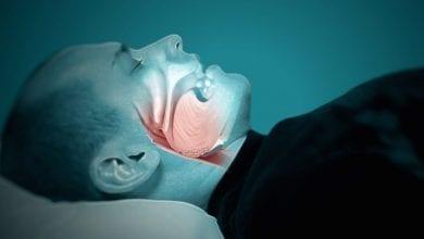 Photo of Какво е сънна апнея? Причини, рискови фактори и лечение