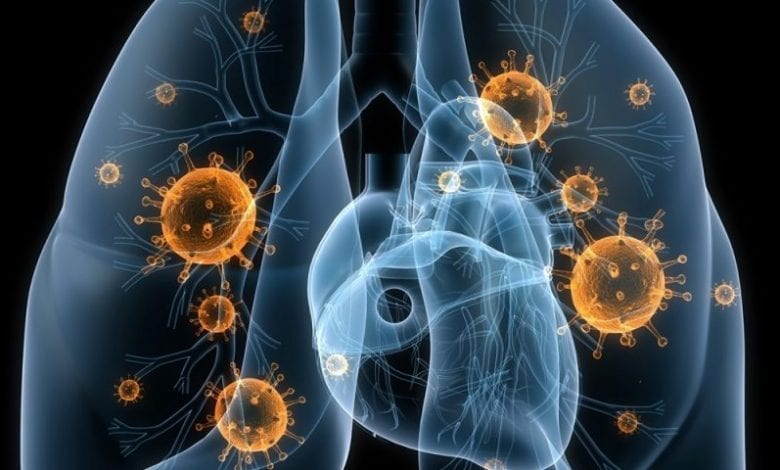 Photo of Всичко за пневмония и как да я лекуваме ефективно