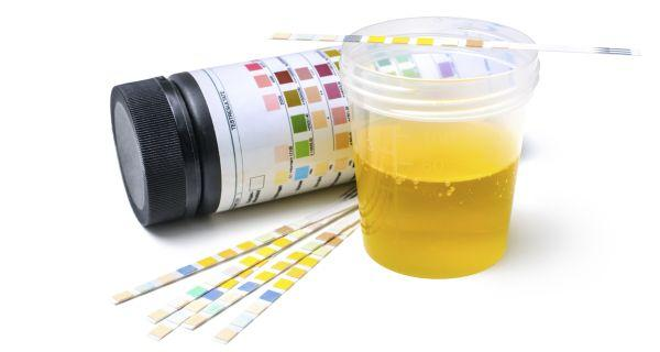 Photo of Протеин в урината: Причини, лечение – 10 възможности за белтък в урината