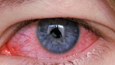 Photo of Конюнктивит (розови очи) – Причини, симптоми и лечение на Конюнктивит