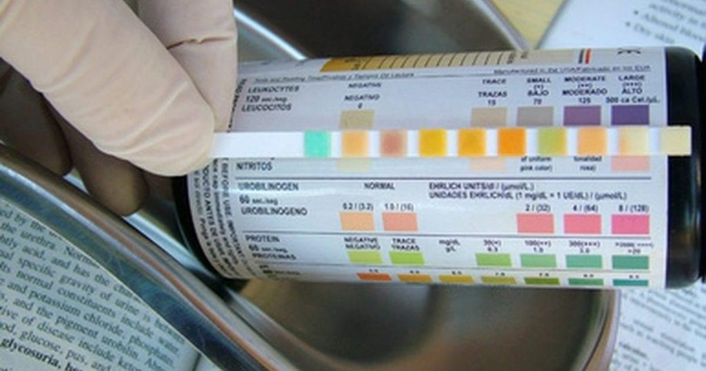 тест-за-протеин-в-урината