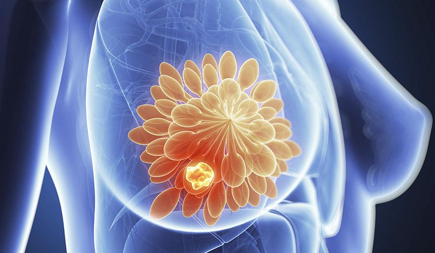 лечение_на_рак_на_гърдата
