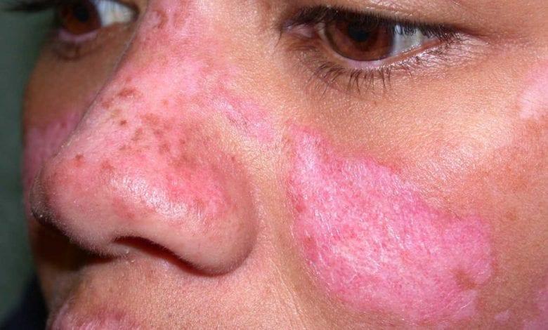 Photo of Лупус – лечение, симптоми, причини + снимки