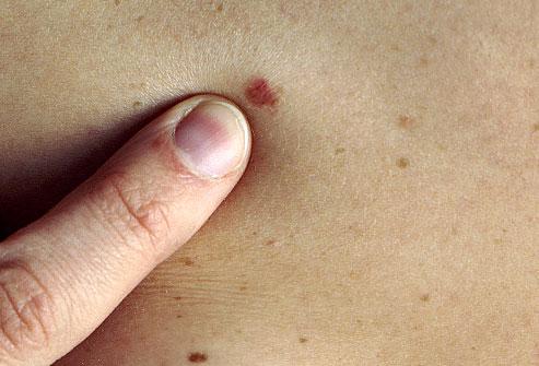 Photo of Рак на кожата – Симптоми, признаци, видове и лечение