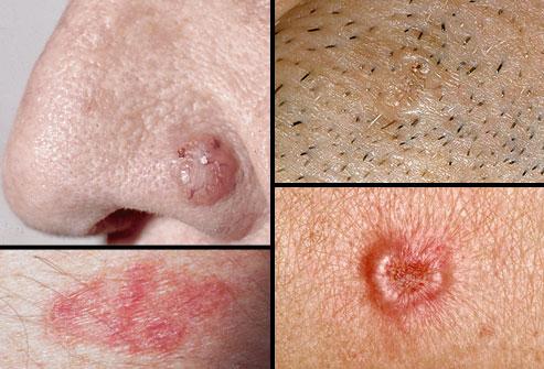 рак-на-кожата-снимки