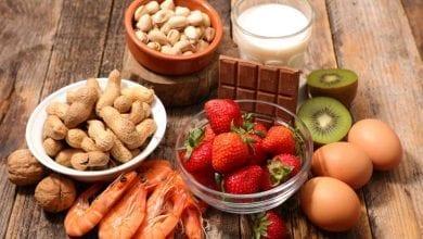 Photo of Хранителни алергии – Причини, симптоми и лечение