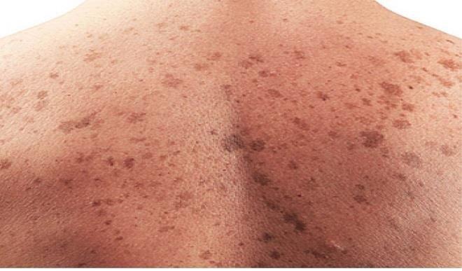 рак-на-кожата-лекар