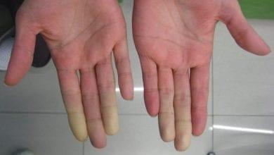 Photo of Болест на Рейно – симптоми и причини. Лечение с билки и лекарства