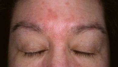Photo of Себореен дерматит-Лечение, домашни средства и причини