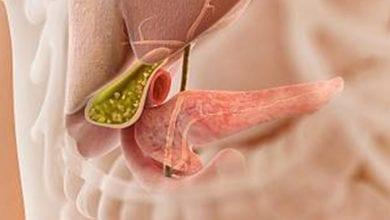 Photo of Болка в жлъчния мехур:Облекчаване, симптоми, лечение и диета