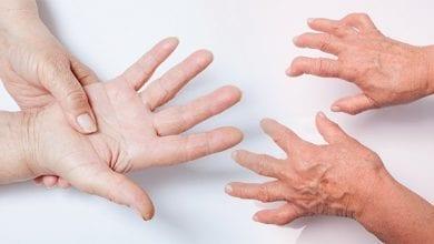 Photo of Ревматоиден артрит – Симптоми, причини и лечение