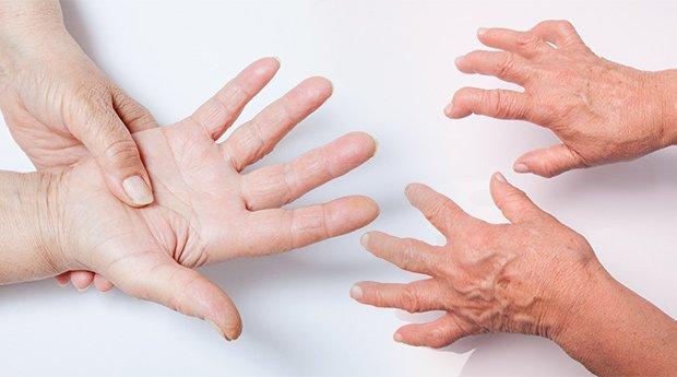 Психосоматика на артрит при възрастни и деца