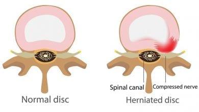 Photo of Дискова херния: Лечение, причини, симптоми и хирургия