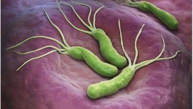 Photo of Хеликобактери пилори: Лечение, причини и симптоми