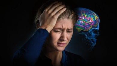 Мигрена-Симптоми-причини-лечение