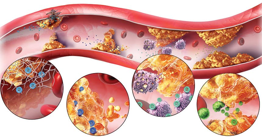 Атеросклероза: Как да я предотвратим, Причини и Лечение