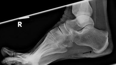 Photo of Шипове – Причини и лечение в крака, врата и коляното