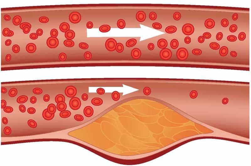 Какво-е-Атеросклероза