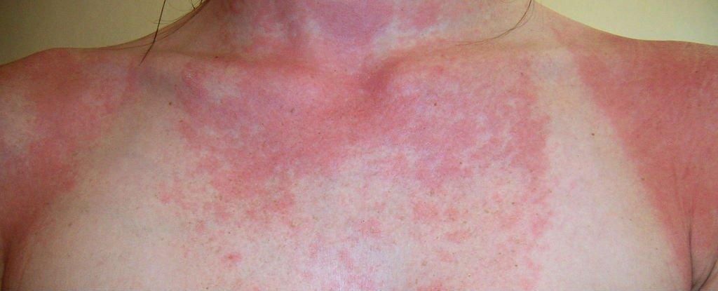 слънчева-алергия-описание