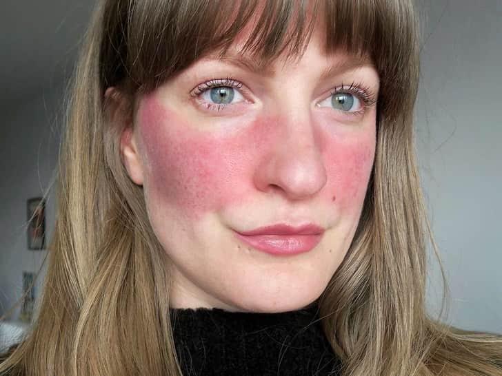 Зачервяване на кожата_Снимки, причини, проблеми и превенция