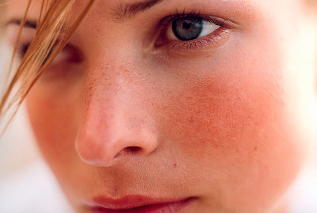 Photo of Зачервяване на кожата: Снимки, причини, проблеми и превенция