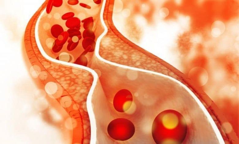 Photo of Холестерол: Най-добри храни за намаляване на нивата му