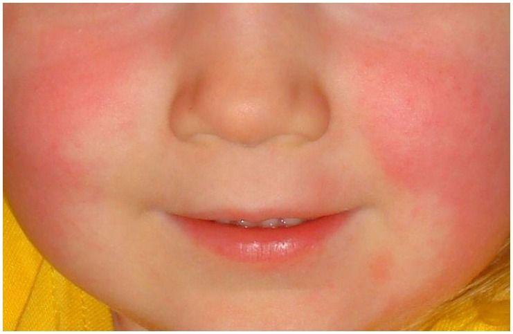Зачервяване на кожата: Снимки, причини_проблеми и превенция