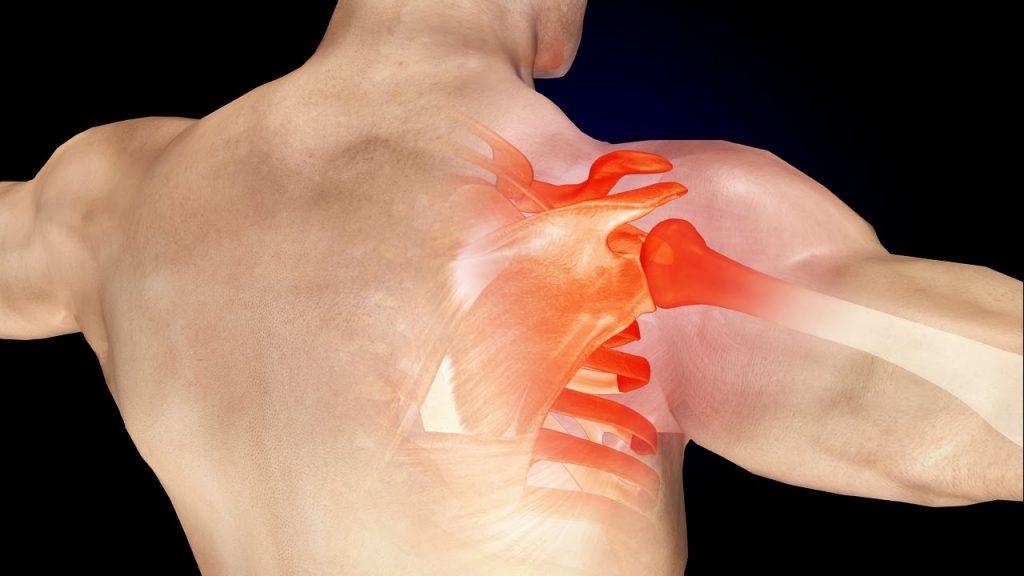 Болки в рамото и ръката: 8 причини и начини за лечение