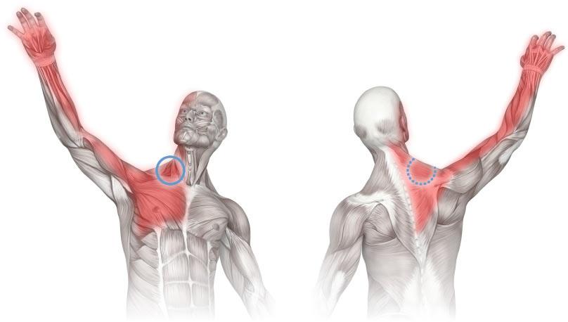Силна болка в рамото и врата