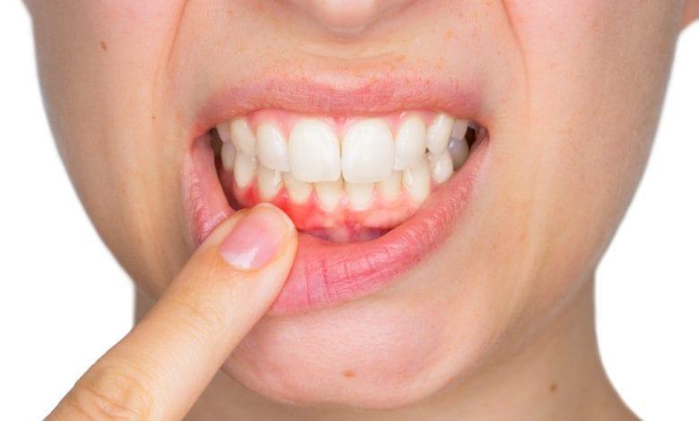Photo of Възпаление на венците: 10 домашни лечения