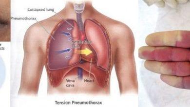 Photo of Хипоксемия – научно доказано лечение, Причини, симптоми