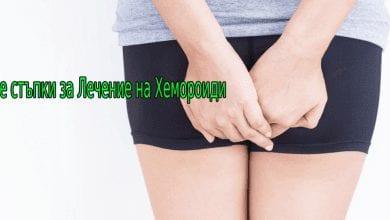 9-те стъпки за лечение на хемороиди