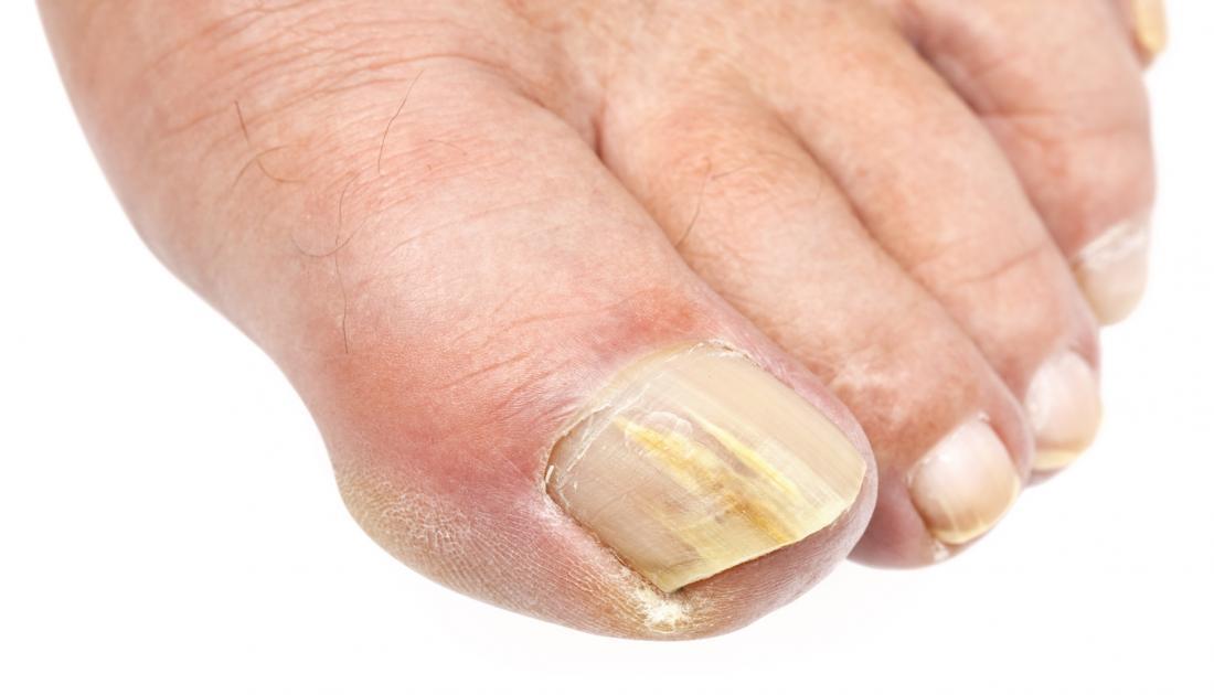 Photo of Гъбична инфекция: как се лекува и какви видове са