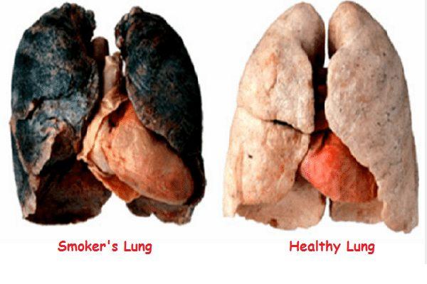 бели дробове на пушач